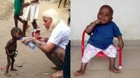 Өлсгөлөнгөөр амиа алдах гэж байсан бяцхан хүүгийн гайхалтай түүх (Фото)